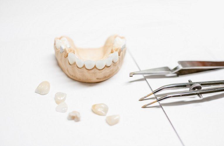 Materiale de ultimă oră pentru coroane dentare